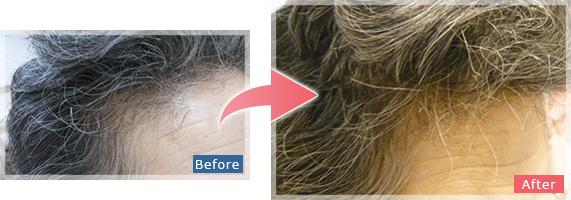 「女性」「生え際」「頭頂部」のHARG(ハーグ)療法 症例
